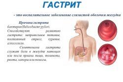 Причины гастрита и его симптомы