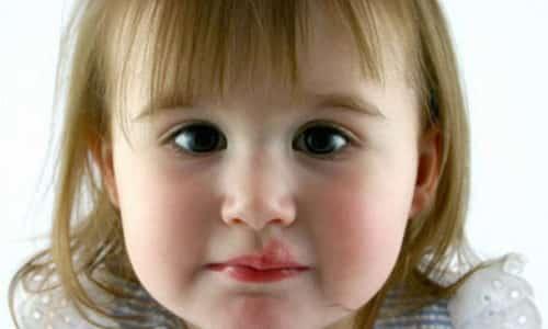 Противовирусные препараты и иммуностимулирующие средства действуют на детский организм слабо