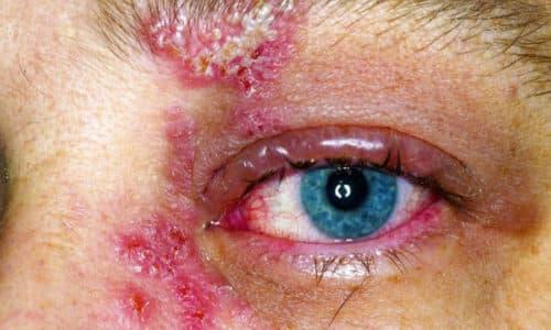 Герпес, поражающий глазные оболочки, - вирусное заболевание, вызываемое патогенами 1 и 3 типа