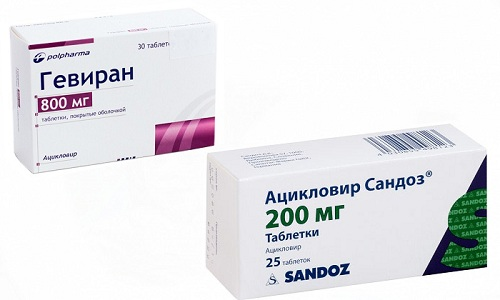 Для лечения вирусных заболеваний часто применяют противовирусные препараты Гевиран или Ацикловир