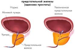 Схема доброкачественной гиперплазии простаты