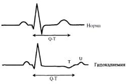 Диагностика гипокалиемии на ЭКГ
