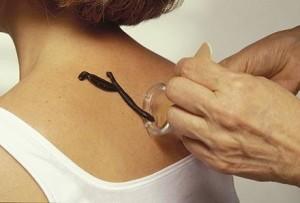 Гирудотерапия - лечение пиявками