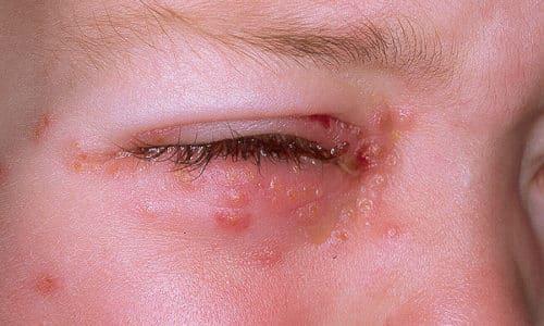 Причины возникновения герпеса на глазах у детей связаны с несоблюдением личной гигиены, когда во время игр ребенок грязными руками чешет органы зрения