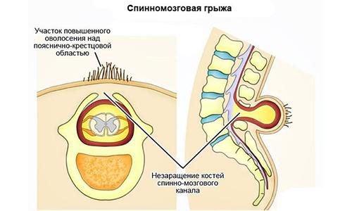 Спинномозговая грыжа - это опасная врожденная аномалия развития, при которой наблюдается неправильное формирование позвоночника и выход спинного мозга через имеющееся в отверстие между позвонками