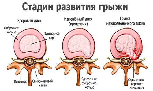 Ядро диска провоцирует появление ряда неприятных симптомов, т. к. задевает нервные корешки