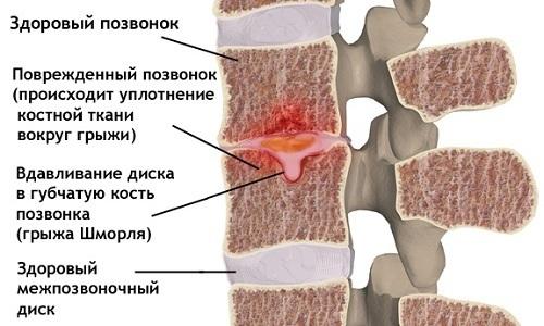 Опасность грыжи Шморля заключается в отсутствии симптомов, что обусловлено скрытым течением патологии из-за локализации выпячивания