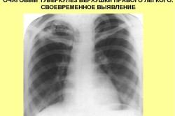 Схема очагового туберкулеза легких