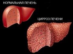 Отличие нормальной печени от печени с циррозом