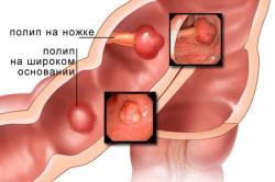 Виды полипов в кишечнике