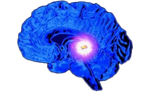 Дифференциальная диагностика этой врожденной аномалии развития предполагает исключение опухолей мозга