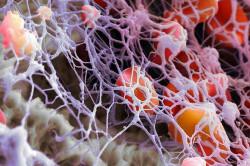Преобразование фибриногена в фибрин