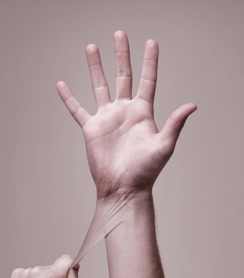 растягивание кожи на руке