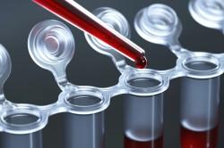 Анализ крови на анемию Шофара