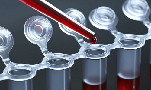 Исследование крови для определения специфических маркеров