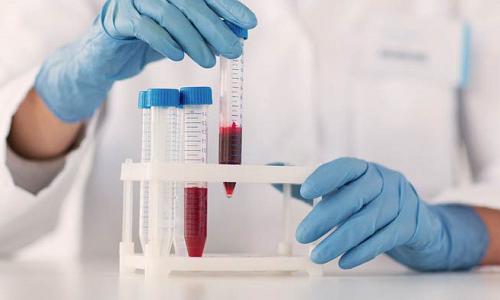 Клиническая лабораторная диагностика