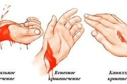 Схема возникновения желудочного кровотечения