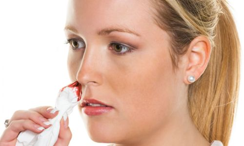 Проблемы кровотечения носа