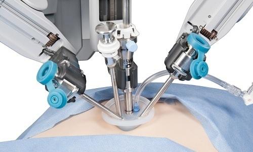 Если признаки ишемии тканей отсутствуют, применяется менее травматичный лапароскопический метод хирургического вмешательства