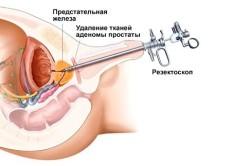 Принцип операции по удалению аденомы