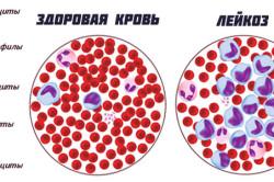 Лейкоз - одна из причин гемолитической анемии