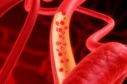 Плохое кровообращение - причины вздутия живота