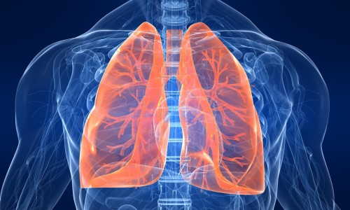 Заболевание легких
