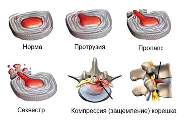 Стадии формирования грыжи