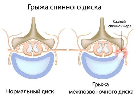 Как сдавливается нерв межпозвоночного диска