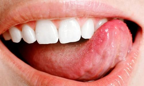 Проблема появления налета на зубах