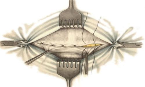 Дефект устраняют путем сшивания мышечных и соединительных тканей полости живота