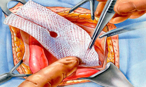 Для устранения дефекта в области грыжи делают небольшой разрез, через который выводят и удаляют грыжевые оболочки и устанавливают эндопротез