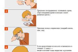Первая помощь при кровотечении из носа