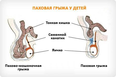 Как внутренние органы выходят в брюшную область
