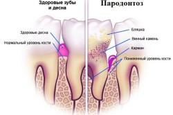 Здоровый зуб и зуб с парадонтозом