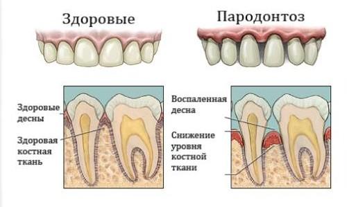 Пародонтоз