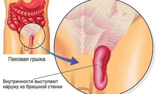 Паховая грыжа может стать причиной, по которой призывнику дадут отсрочку, что зависит от вида болезни и стадии ее развития