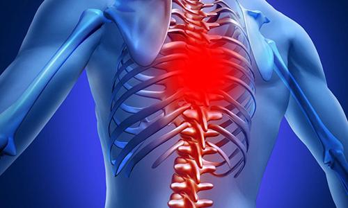 При развивающейся грыже Шморля в грудном отделе позвоночника часто отсутствуют симптомы