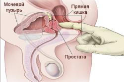 Проведение массажа простаты врачом