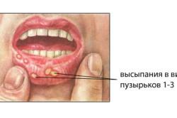 Пузырчатка во рту