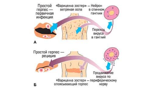 Герпес представляет собой разновидность вируса, который попадает в организм человека и может периодически проявляться