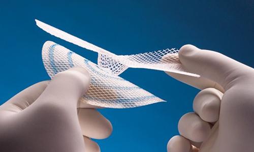 РНS-система - это современный поликомпонентный материал, который не подвергается рассасыванию