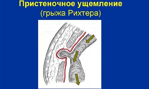 Пристеночное ущемление грыжи называется «грыжа Рихтера», оно встречается при небольших грыжевых образованиях