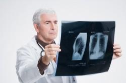 Рентген легких для диагностики туберкулеза