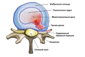 Аномалия спинного диска