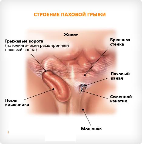 Выход кишечника через паховые ворота