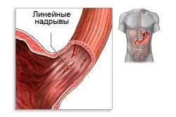 Синдром Мэлори - Вейса - причина желудочного кровотечения