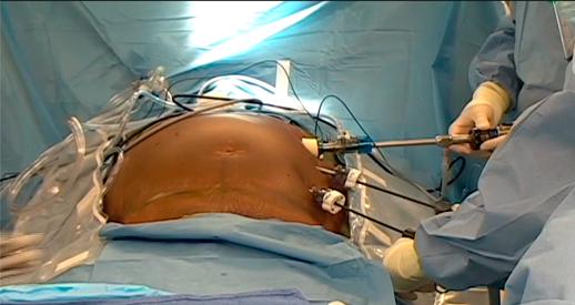Операция на грыжу в области брюшной стенки