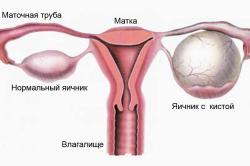 Киста яичника - причина ночных болей в кишечнике