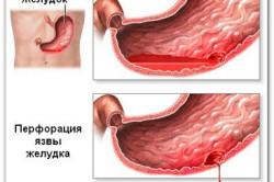 Язва желудка и двенадцатиперстной кишки - причины кровотечений из заднего прохода